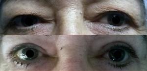 Image du haut : dermatochalasis bilatéral Image du bas : après blépharoplastie supérieure, aspect à 2 mois