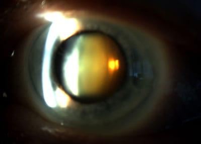 Cataracte à un stade avancé : le cristallin, normalement transparent, prend une teinte marron-orangé