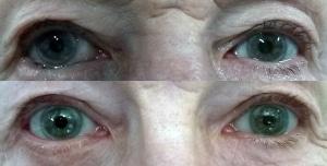 Image du haut : entropion inférieur droit image du bas : aspect à 2 mois après chirurgie