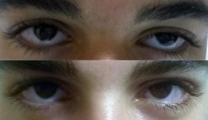 Image du haut : ptosis congénital gauche Image du bas : aspect à 2 mois de la chirurgie