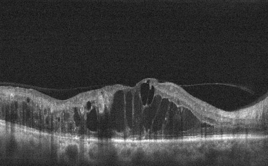 Coupe OCT d'un œdème maculaire diabétique cystoïde