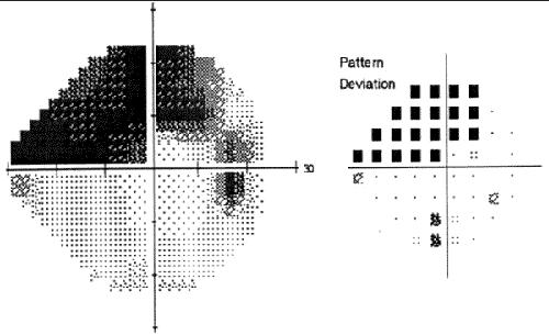 Altération sévère du champ visuel dans le glaucome
