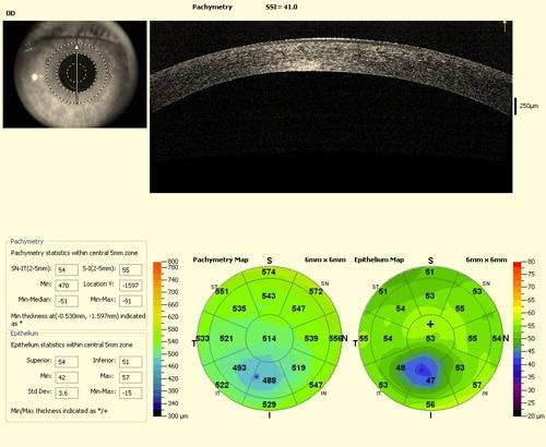Amincissement cornéen inférieur suspect de kératocône