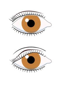 Paupière normale (haut) et dermatochalasis (bas)