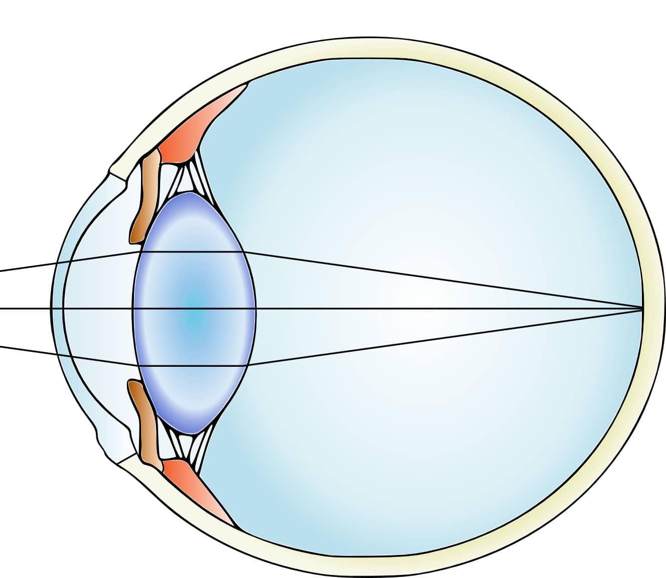 Le cristallin est une lentille naturelle située derrière l'iris