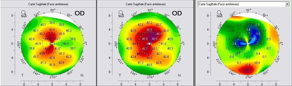 Topographie cornéenne pré-opératoire (milieu) et post-opératoire (gauche)