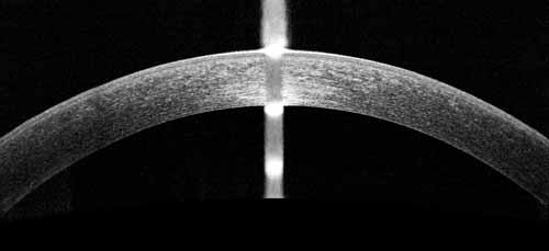 OCT d'une cornée normale (bilan opération laser de la myopie)