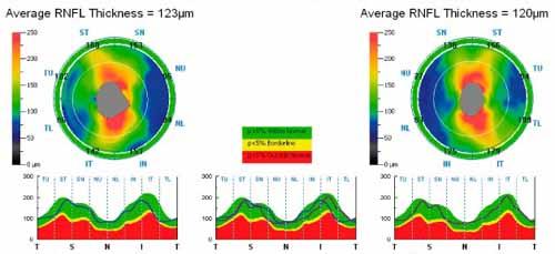 Dépistage du glaucome par mesure de l'épaisseur de la couche des fibres nerveuses rétinienne péripapillaires ( OCT)