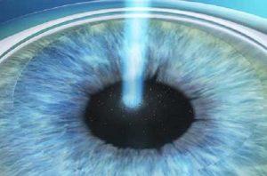 Cirurgia laser da miopia, presbiopia, astigmatismo, hipermetropia