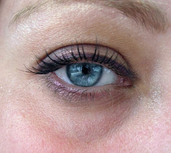 Acide hyaluronique pour les cernes et poches sous les yeux
