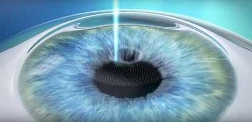 SMILE : chirurgie laser sans douleurs post-opératoires avec récupération visuelle très rapide