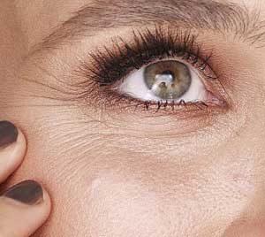 Traitement des rides par injection de toxine botulique (« Botox »)