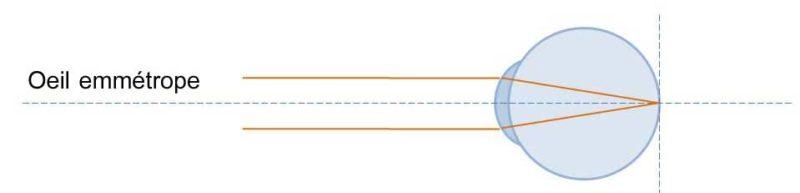 Un œil emmétrope est un œil sans défaut optique