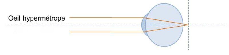 Oeil hypermétrope : les rayons lumineux sont focalisés en arrière de la rétine. La vision est floue en l'absence d'accommodation.